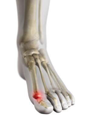Stiff and Painful Big Toe