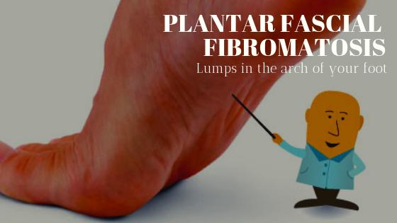 Plantar Fascial Fibromatosis