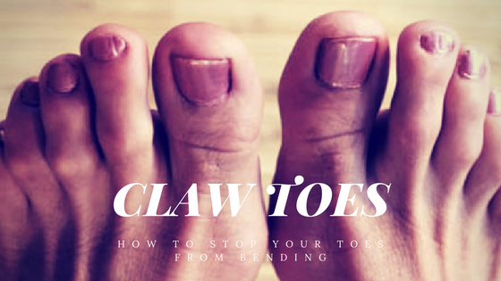 claw toes