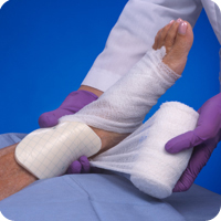 Foot Wound Dressings