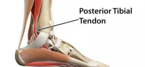 tendon injury