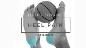 Heel Pain in Children