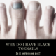 Black Toenails